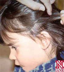 Look for signs of head lice by examining all areas of the scalp. Look for live lice and/or eggs.